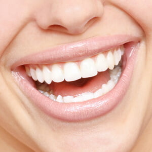 How Much Does It Cost for Dental Implants?